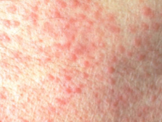 vörös foltok cukorbetegséggel az arcon vörös foltok a felnőttek testén a lábakon