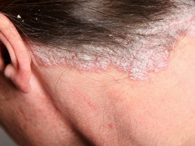 rúna kezelése pikkelysömörhöz pikkelysömör vitaminok kezelse