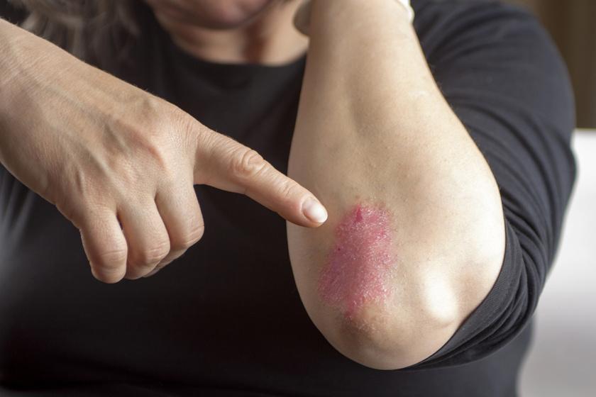 hogyan kell piros foltokat kenni a kezeden hogyan lehet pikkelysömör kezelni peroxiddal
