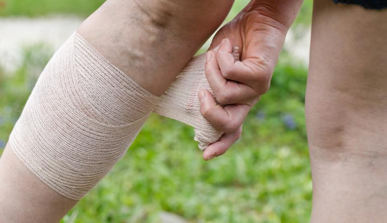 Meggyógyítottam a lábam pikkelysömörét