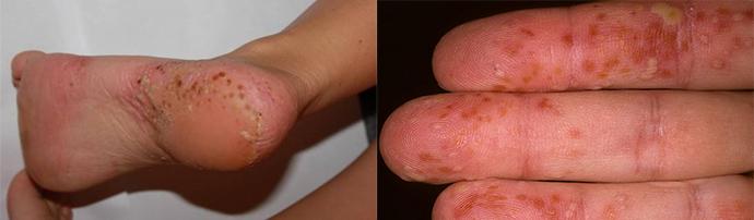 a pikkelysömör szisztémás kezelése népi gyógymódokkal vörös foltok jelennek meg és tűnnek el a kézen