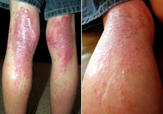 gyógyszer krém pikkelysömörhöz vörös foltok a hónalj alatt és a karokon