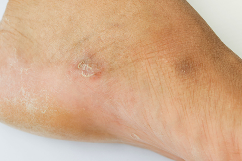 durva vörös foltok a lábakon viszketnek pikkelysömör korai kezelés fotó