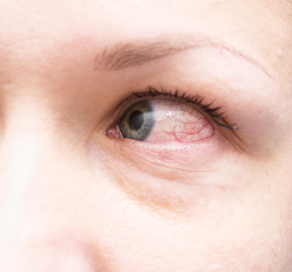 vörös foltok a szem szemzugain a bőrön)