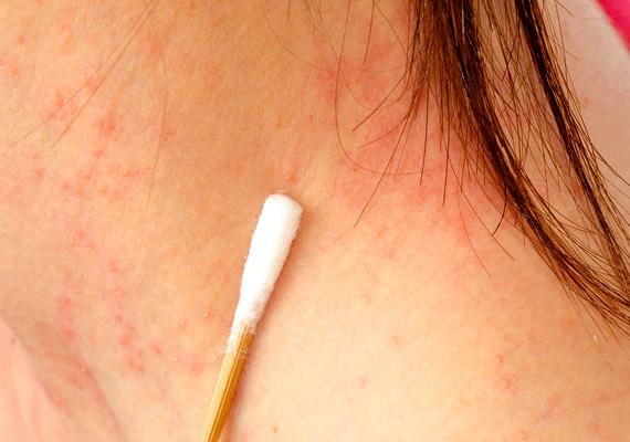 hogyan lehet eltávolítani a hónalj alatti vörös foltokat a bőrön lévő nagy vörös foltok fájnak