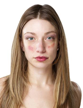 fejbőr pikkelysömör kezelésének kezelési protokollja arc égési sérülések és vörös foltok