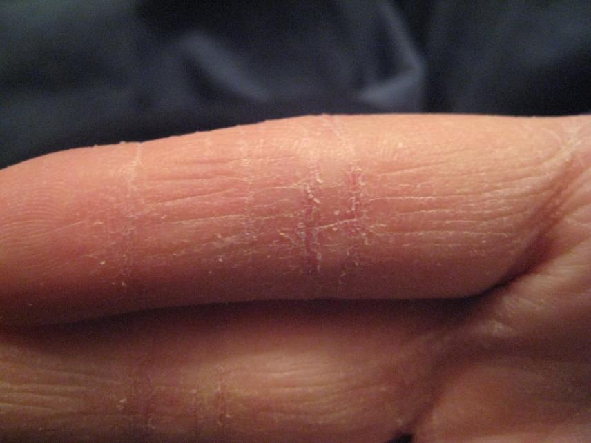 vörös foltok a kezeken vízzel érintkezve halványvörös foltok a hasán