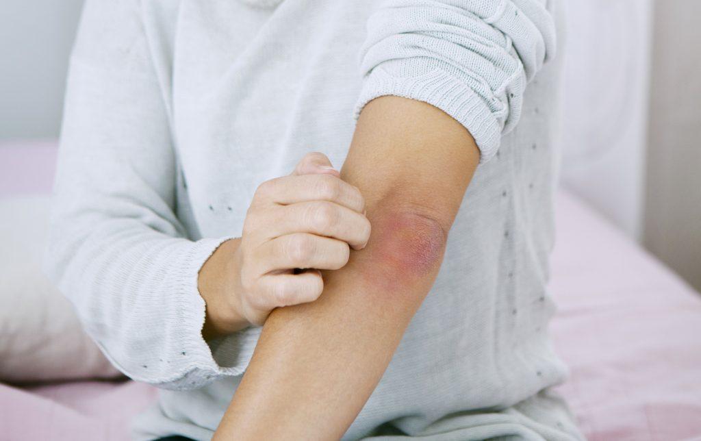 hogyan kell kezelni a kezt pikkelysömör