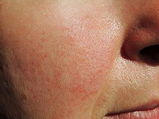 vörös foltok egy felnőtt férfi arcán okozzák