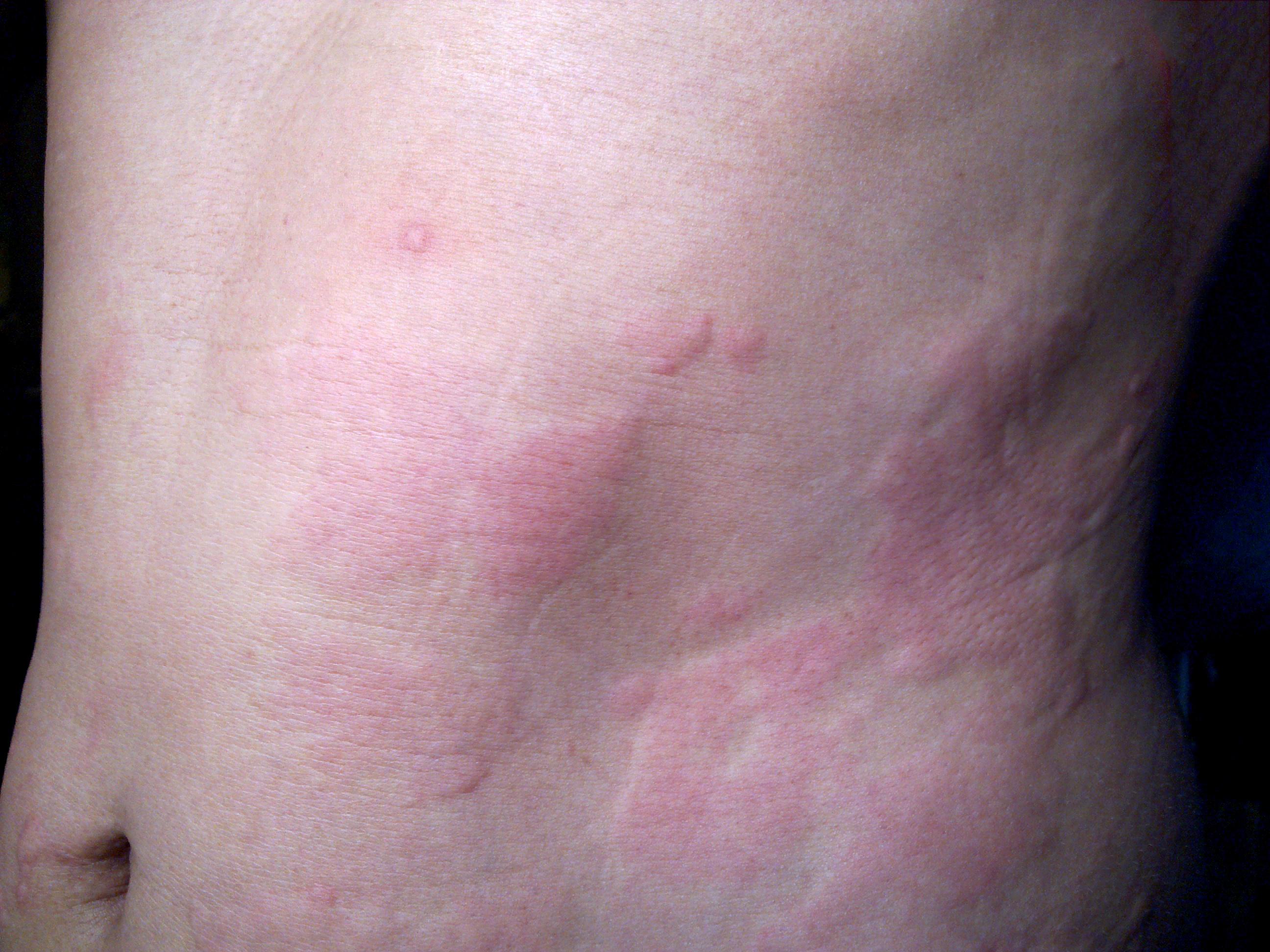 genetech.hu: Viszkető piros foltok: így kezelhető a csalánkiütés – Semmelweis Médiasarok