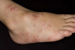 minden lábát az epilálásból származó vörös foltok borítják