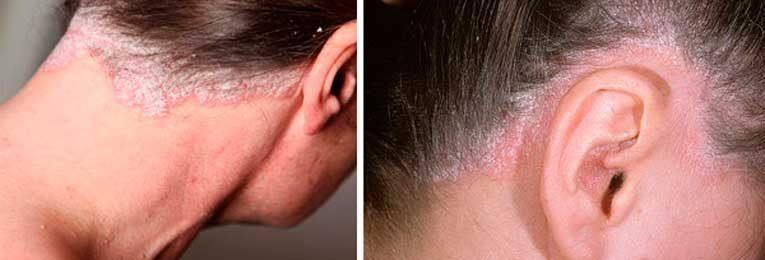 ízületi fájdalom kezelése pikkelysömörben vörös foltok a nagylábujjon