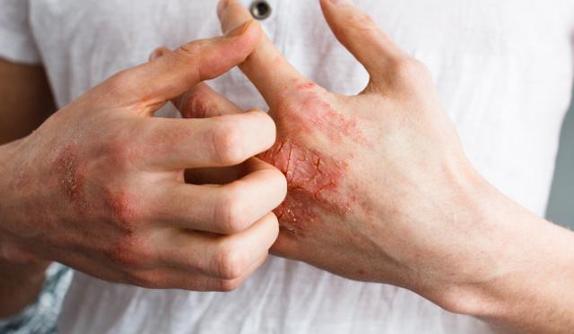 vörös foltok jelentek meg az arcon és viszket gyógytea pikkelysömör kezelésére