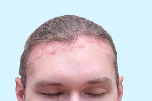 a pikkelysmr okai a fejen s annak kezelse
