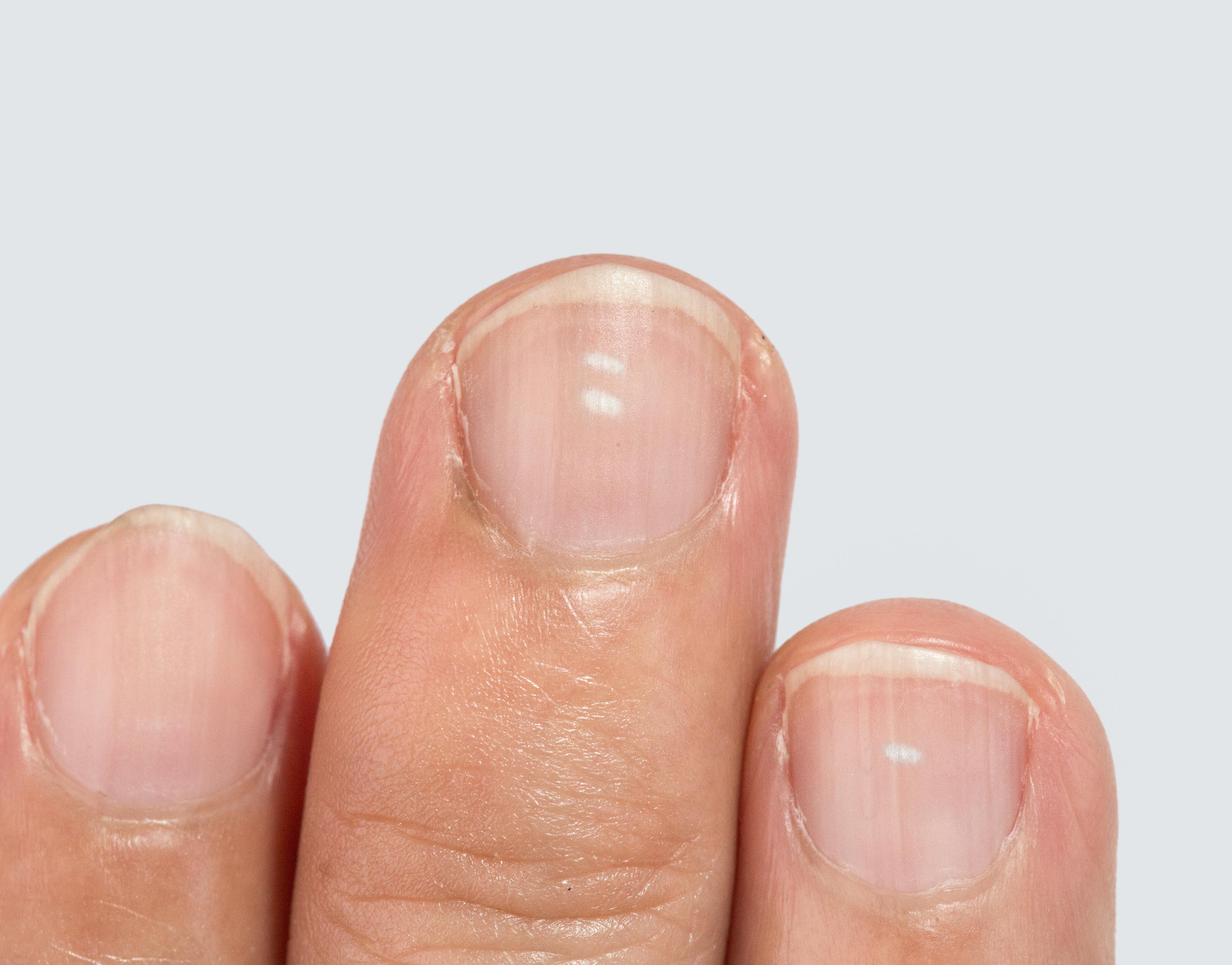 A kezén lévő vörös foltok megjelenésének és kezelésének okai - Elemzések