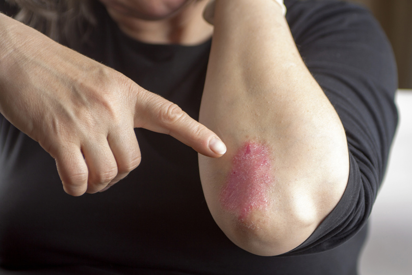 erythrodermalis pikkelysömör otthoni kezelse