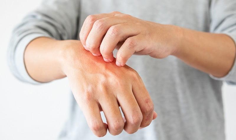 pikkelysömör hatékony gygyszer pikkelysömör okai a betegsg kezelsi mdszerei