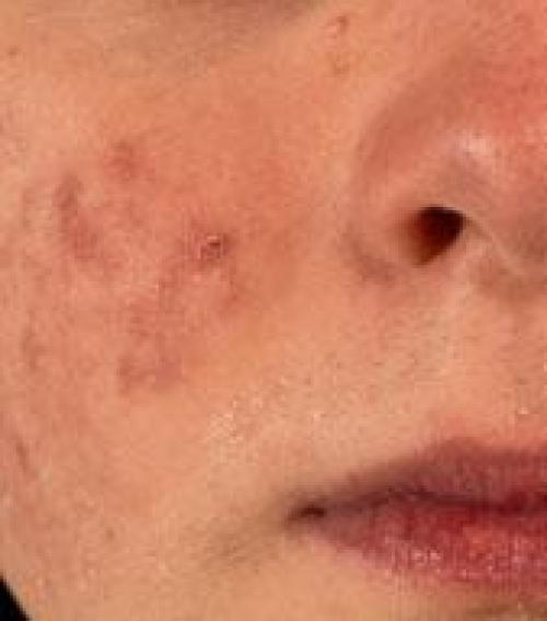 egy kis vörös folt jelent meg az arcon