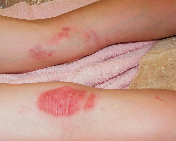 gyógyítható-e a pikkelysömör akupunktúrával?