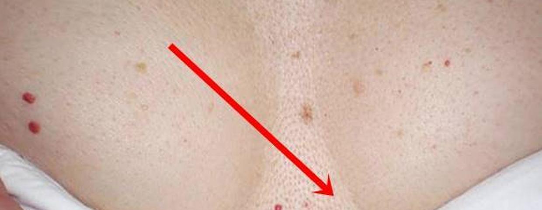 hogyan kezeljük a mellkas vörös foltjait