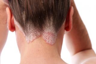 piros foltok a hátán hogyan kell kezelni fejbőr pikkelysömör kezelést okoz