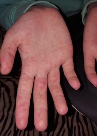 vörös sűrű foltok a kezeken