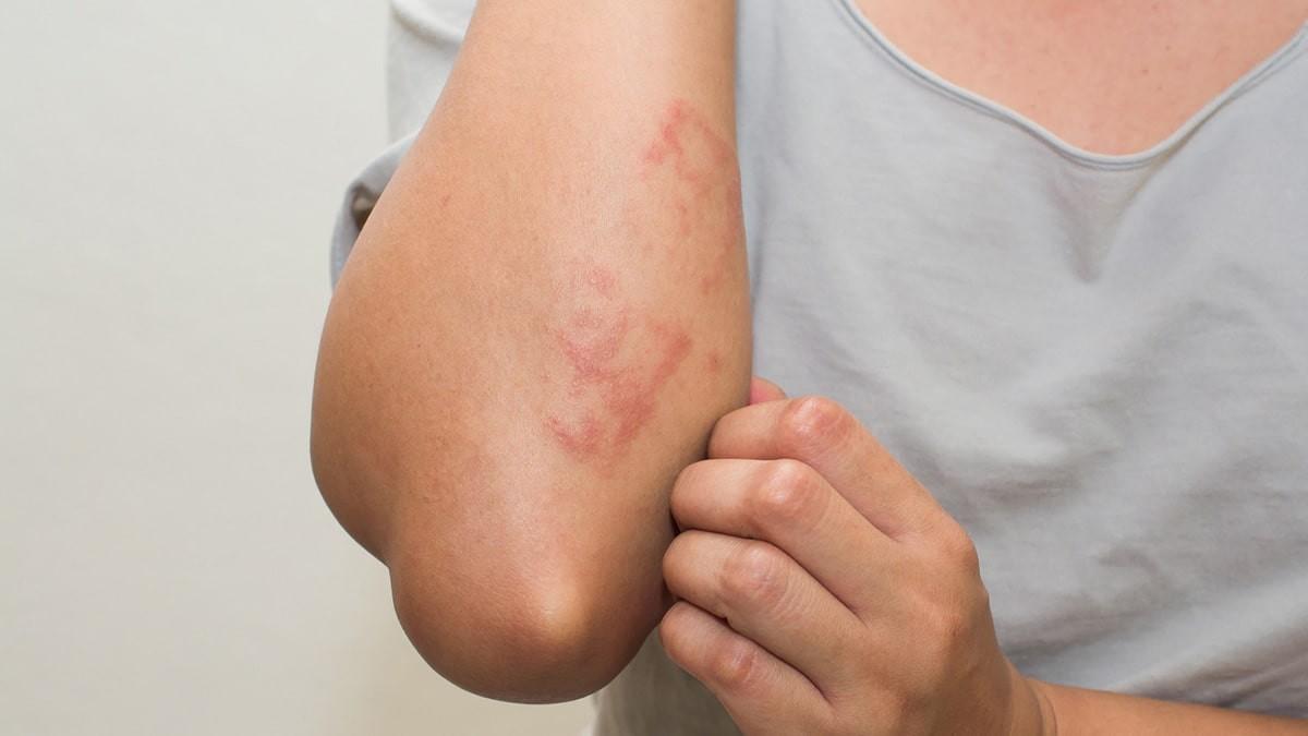 vörös foltok a felnőttek testén a lábakon dermalit vélemények a pikkelysmr kezelsre