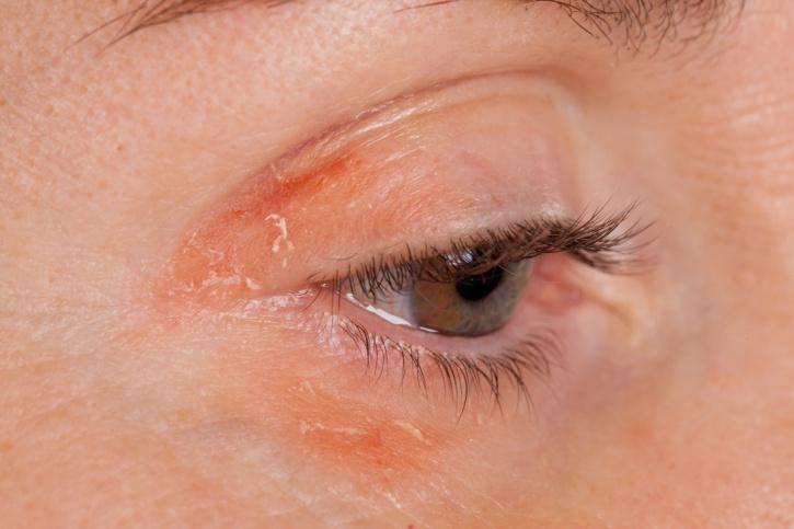 vörös foltok a szem alatt az arcon