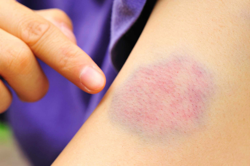 Felnőtt bőrkiütés: típusok, okok, fotók és leírás - Tünetek November