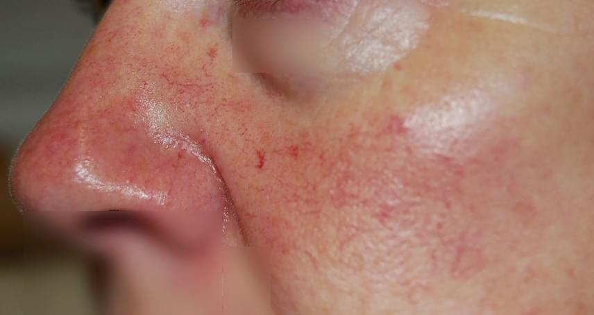 vörös foltok az arcon az orr közelében
