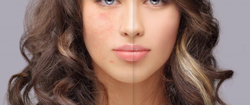 A leggyakoribb bőrbetegségek