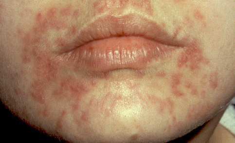 az arcát apró piros foltok borítják szóda a pikkelysömör kezelésében
