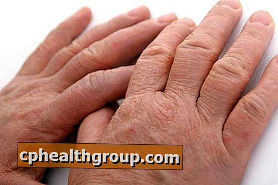 vörös foltok jelennek meg a kezek bőrén